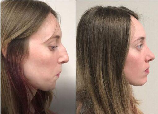 Foto resultado rinoplastia